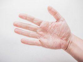 Peeling fingertips