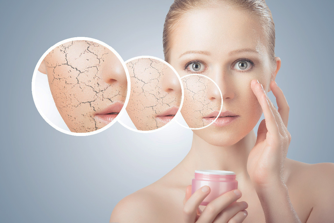 How to Get Rid of Dry Flaky Skin