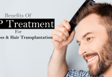 PRP treatment